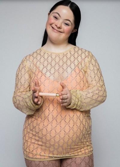 เฟียร์ซเว่อร์ ! Ellie Goldstein นางแบบดาวน์ซินโดรมคนแรกของ Gucci อินเนอร์มาเต็ม